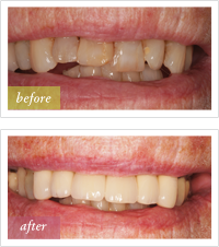 before and after dental crowns treatment