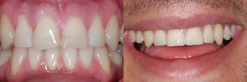 Before And After Gallery Gorse Covert Dental Cosmetic